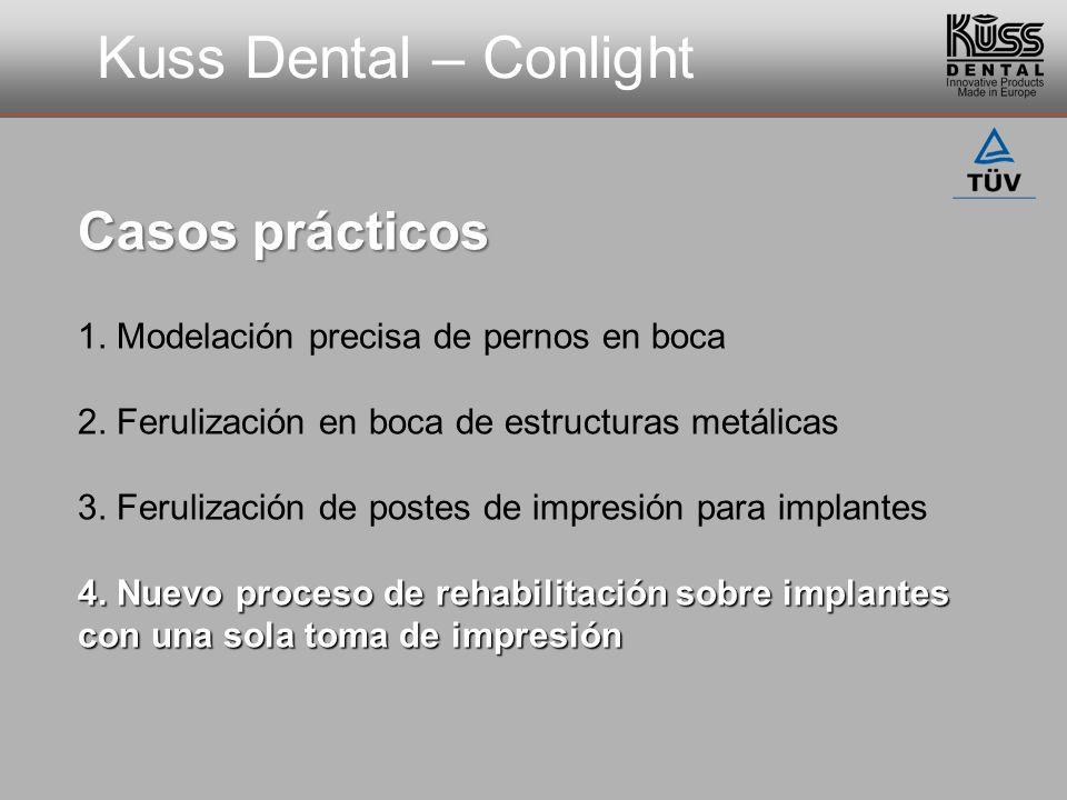Kuss Dental – Conlight 1. Modelación precisa de pernos en boca 2. Ferulización en boca de estructuras metálicas 3. Ferulización de postes de impresión