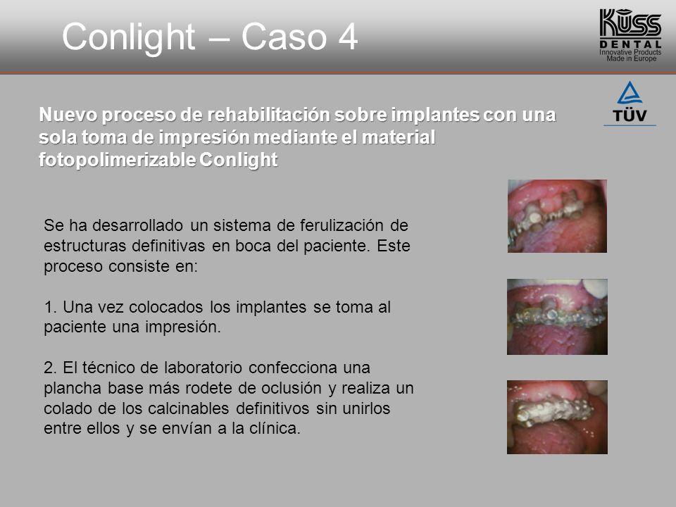 Conlight – Caso 4 Nuevo proceso de rehabilitación sobre implantes con una sola toma de impresión mediante el material fotopolimerizable Conlight Se ha