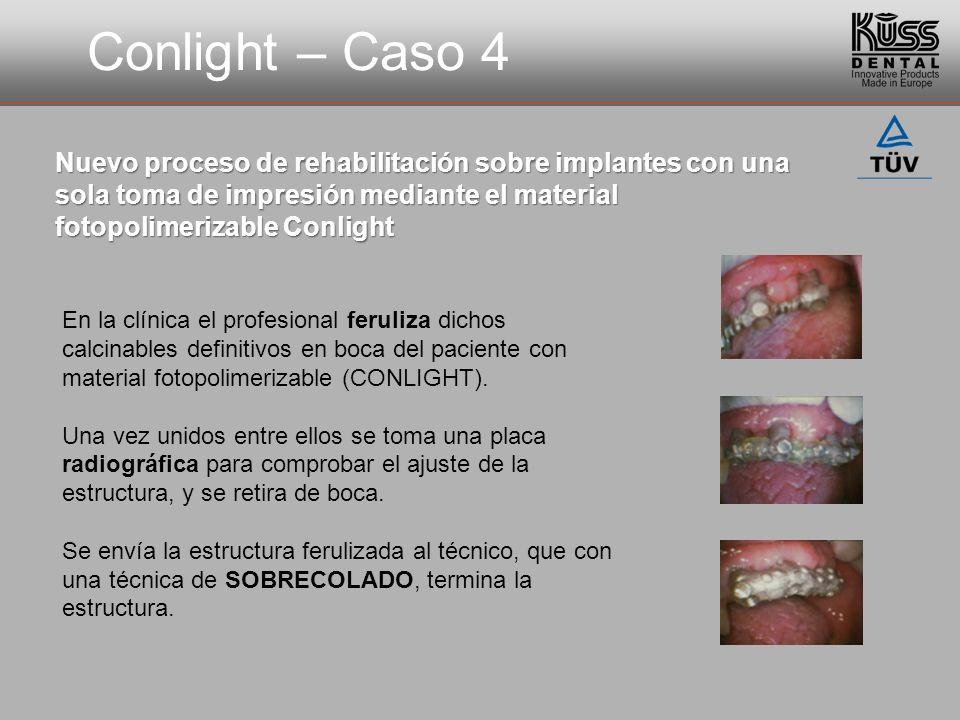 Conlight – Caso 4 Nuevo proceso de rehabilitación sobre implantes con una sola toma de impresión mediante el material fotopolimerizable Conlight En la clínica el profesional feruliza dichos calcinables definitivos en boca del paciente con material fotopolimerizable (CONLIGHT).