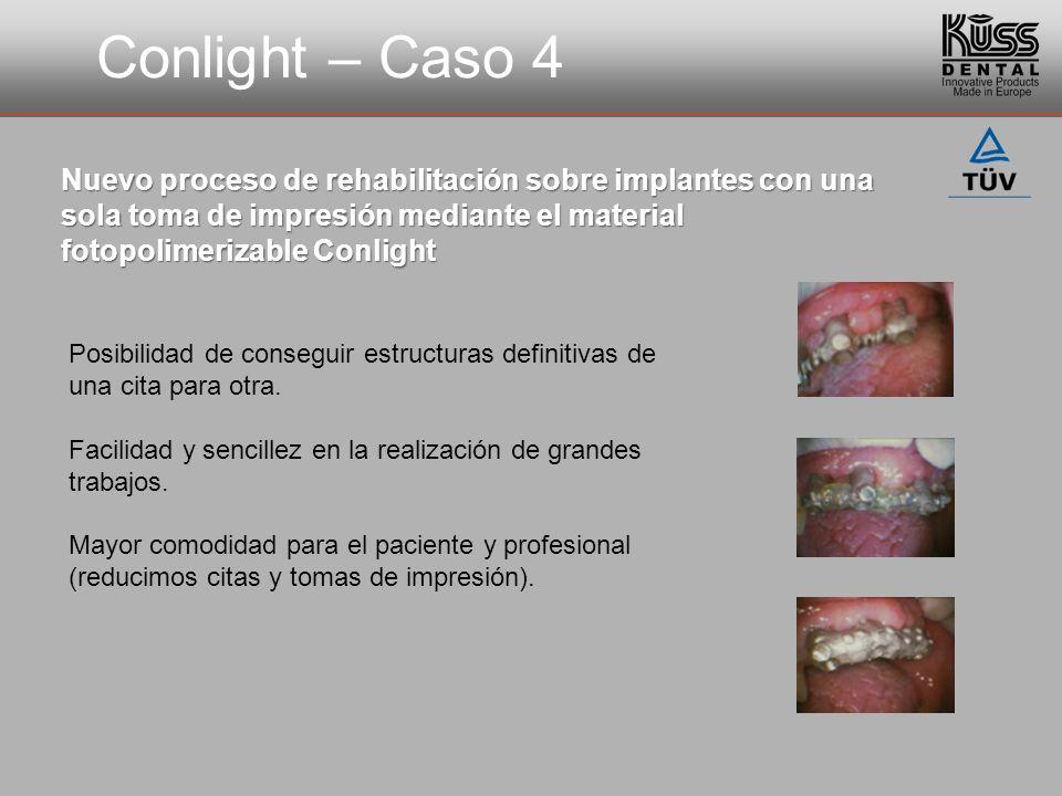 Conlight – Caso 4 Nuevo proceso de rehabilitación sobre implantes con una sola toma de impresión mediante el material fotopolimerizable Conlight Posib
