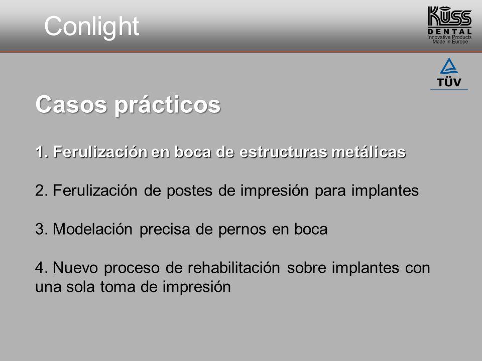 Conlight Casos prácticos 1. Ferulización en boca de estructuras metálicas 2. Ferulización de postes de impresión para implantes 3. Modelación precisa