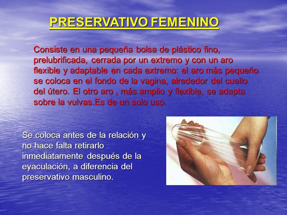 PRESERVATIVO FEMENINO Consiste en una pequeña bolsa de plástico fino, prelubrificada, cerrada por un extremo y con un aro flexible y adaptable en cada