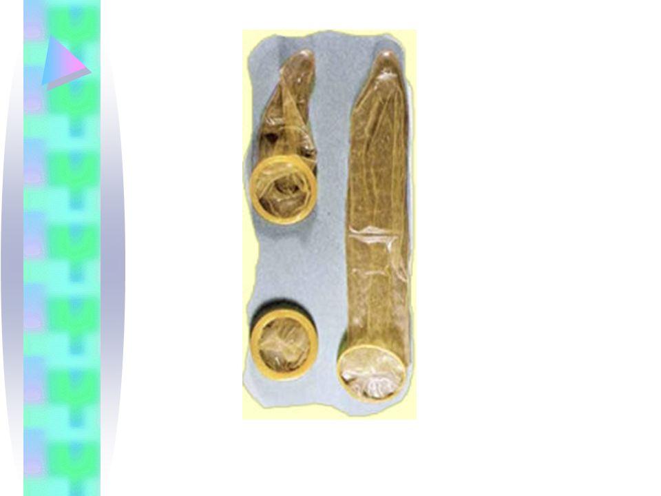 Descripción El condón masculino es una funda o cubierta delgada que se coloca en el pene erecto antes de la penetración vaginal.