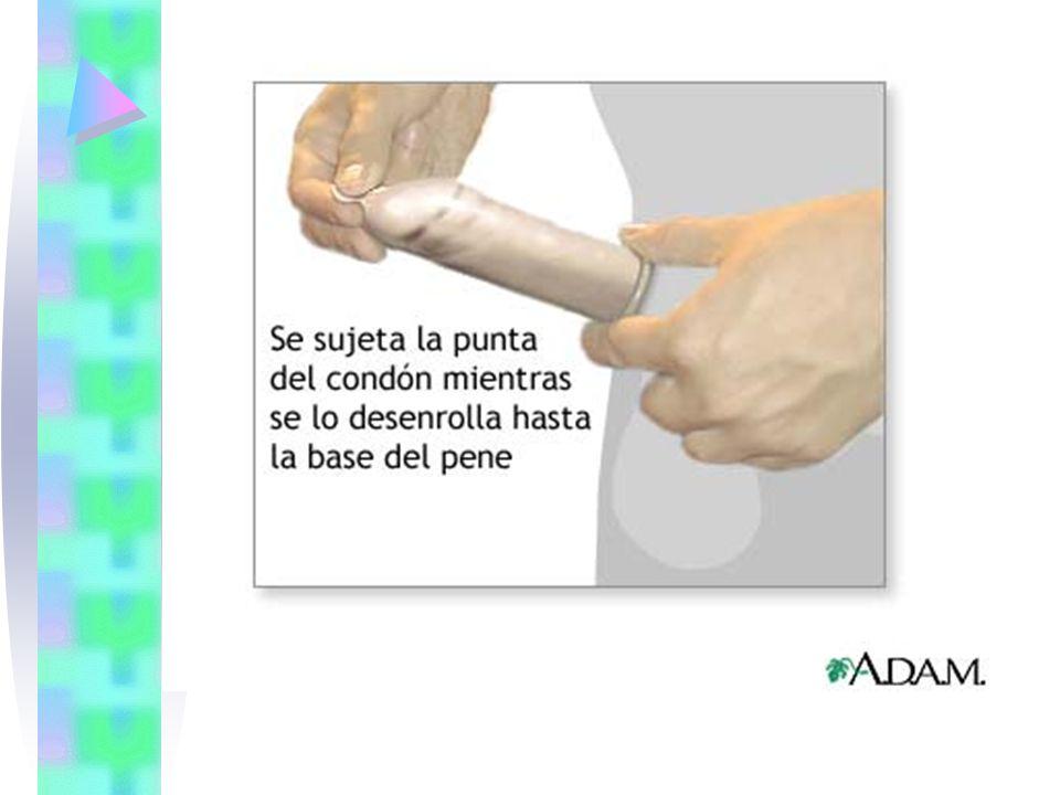 Después de la eyaculación, retire el pene antes de perder por completo la erección.
