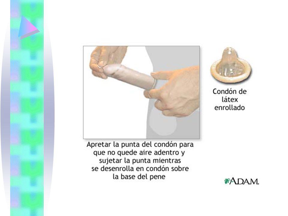 CONDON FEMENINO El condón femenino es una funda de poliuretano resistente, delgado y transparente, lubricado con dimeticona.