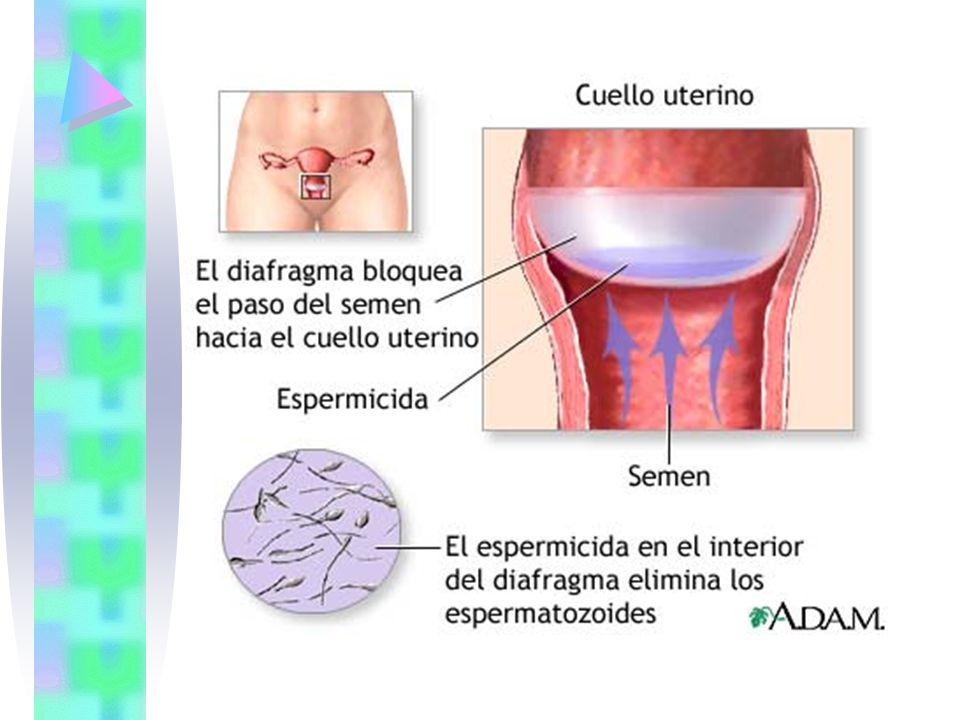 Cada diafragma dura entre uno y tres años, dependiendo del uso y sus cuidados.