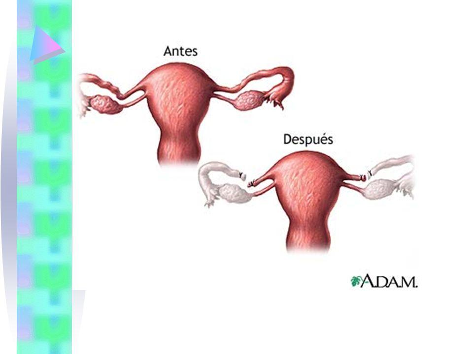 ANTICONCEPCION QUIRURGICA MASCULINA La AQV masculina o vasectomía es la oclusión bilateral de los conductos deferentes y puede realizarse en cualquier etapa de la vida reproductiva del varón.