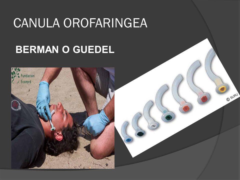 CANULA OROFARINGEA BERMAN O GUEDEL