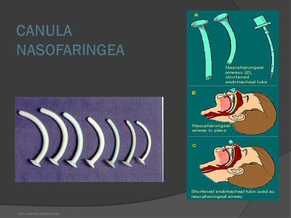 CANULA NASOFARINGEA www.reeme.arizona.edu