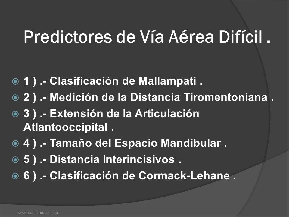 Predictores de Vía Aérea Difícil. 1 ).- Clasificación de Mallampati. 2 ).- Medición de la Distancia Tiromentoniana. 3 ).- Extensión de la Articulación