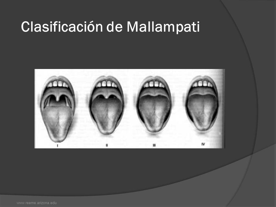 Clasificación de Mallampati www.reeme.arizona.edu