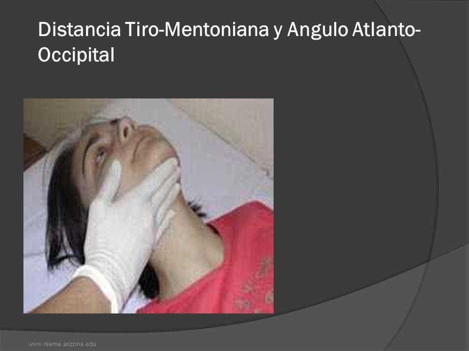 Distancia Tiro-Mentoniana y Angulo Atlanto- Occipital www.reeme.arizona.edu
