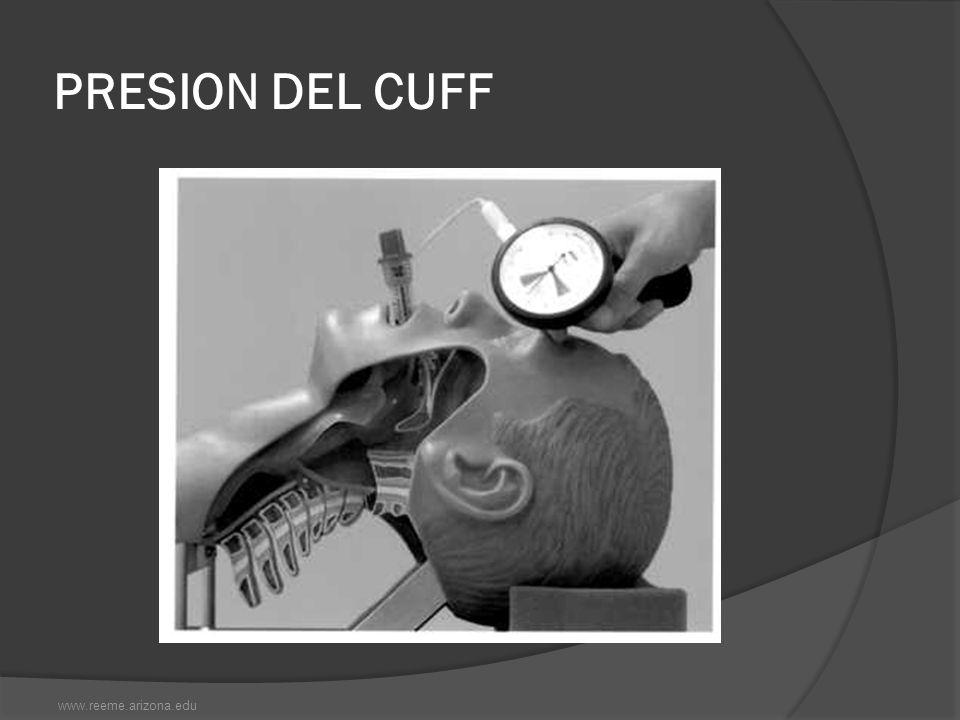 PRESION DEL CUFF www.reeme.arizona.edu
