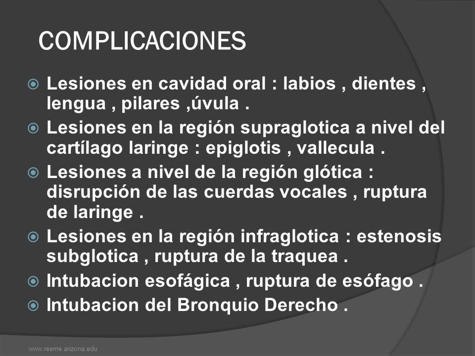 COMPLICACIONES Lesiones en cavidad oral : labios, dientes, lengua, pilares,úvula. Lesiones en la región supraglotica a nivel del cartílago laringe : e