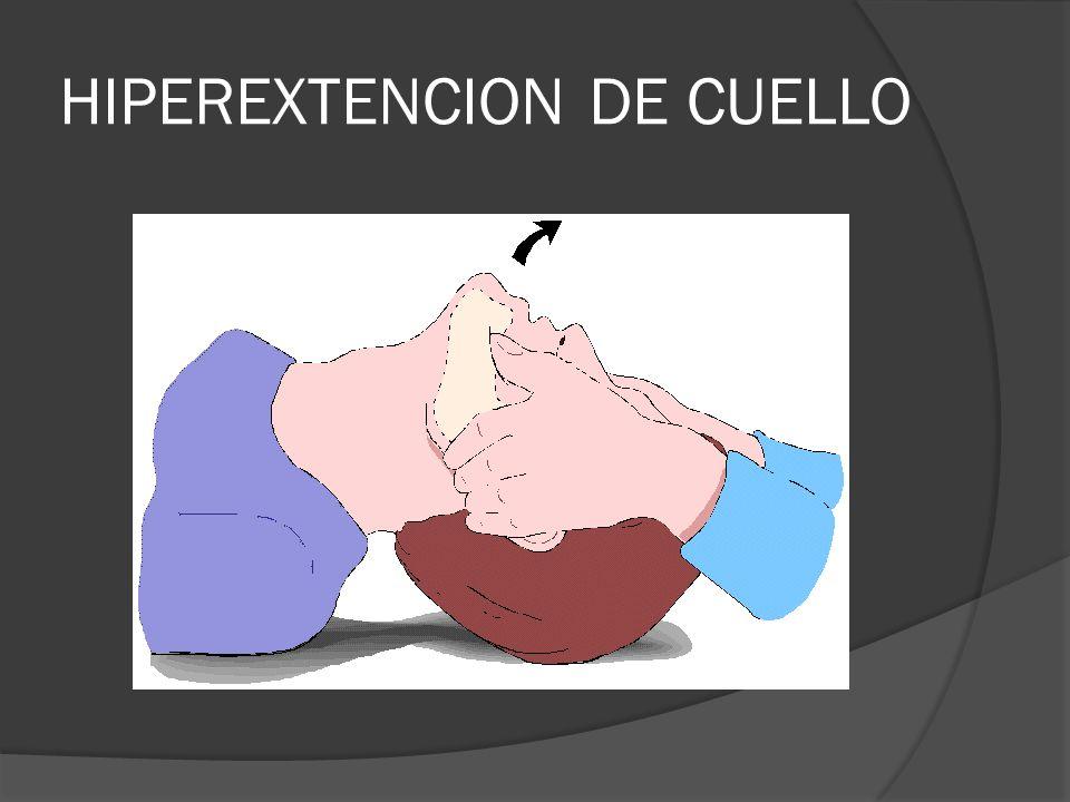 HIPEREXTENCION DE CUELLO