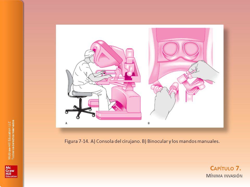 McGraw-Hill Education LLC Todos los derechos reservados. C APÍTULO 7. M ÍNIMA INVASIÓN Figura 7-14. A) Consola del cirujano. B) Binocular y los mandos