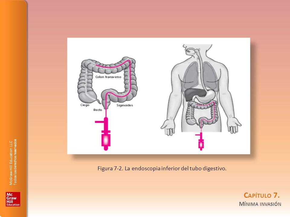 McGraw-Hill Education LLC Todos los derechos reservados. C APÍTULO 7. M ÍNIMA INVASIÓN Figura 7-2. La endoscopia inferior del tubo digestivo.