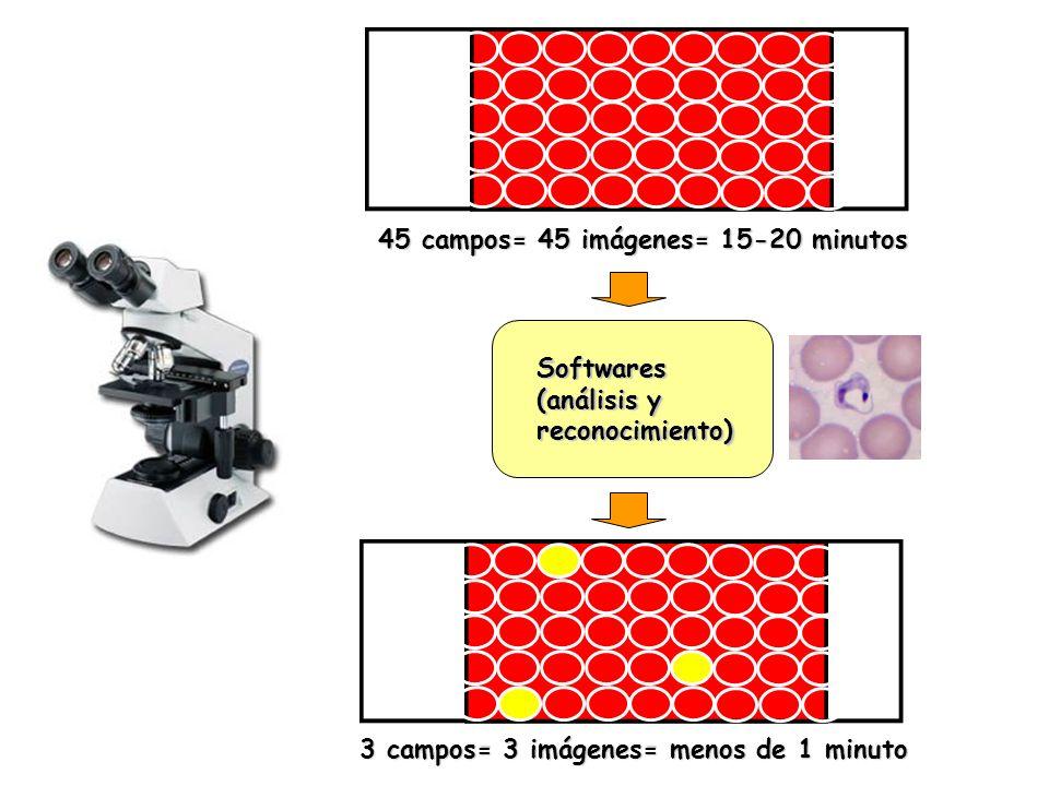 45 campos= 45 imágenes= 15-20 minutos Softwares (análisis y reconocimiento) 3 campos= 3 imágenes= menos de 1 minuto