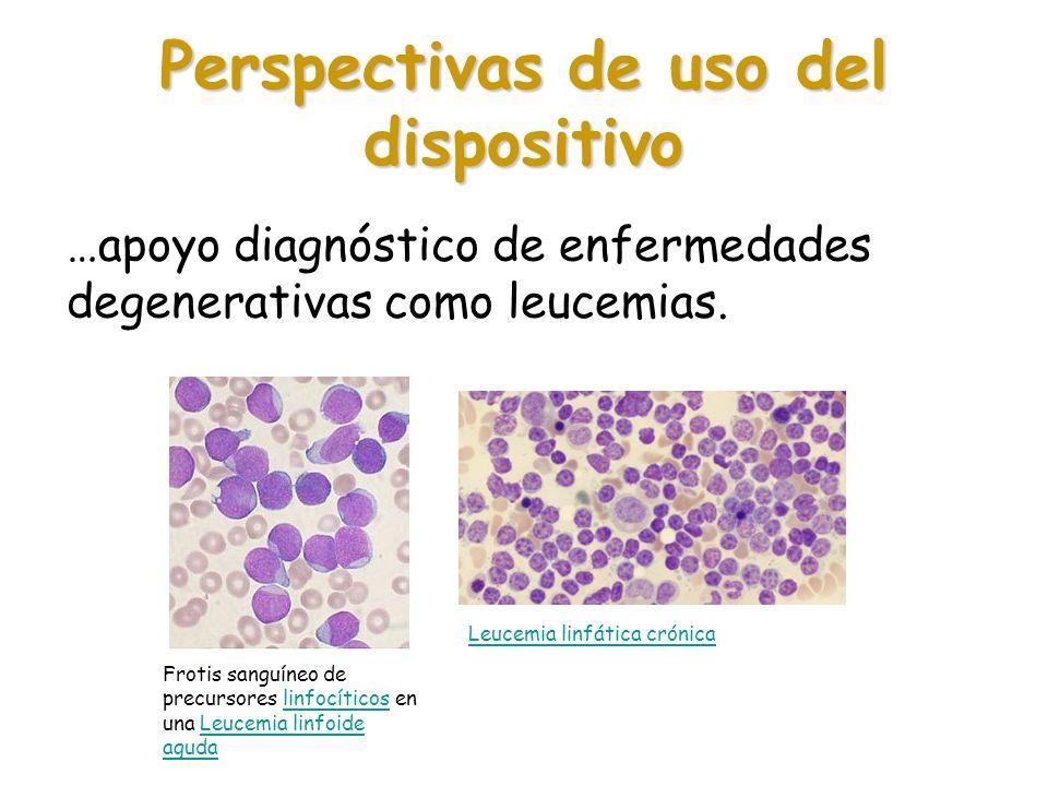 Perspectivas de uso del dispositivo …apoyo diagnóstico de enfermedades degenerativas como leucemias. Frotis sanguíneo de precursores linfocíticos en u