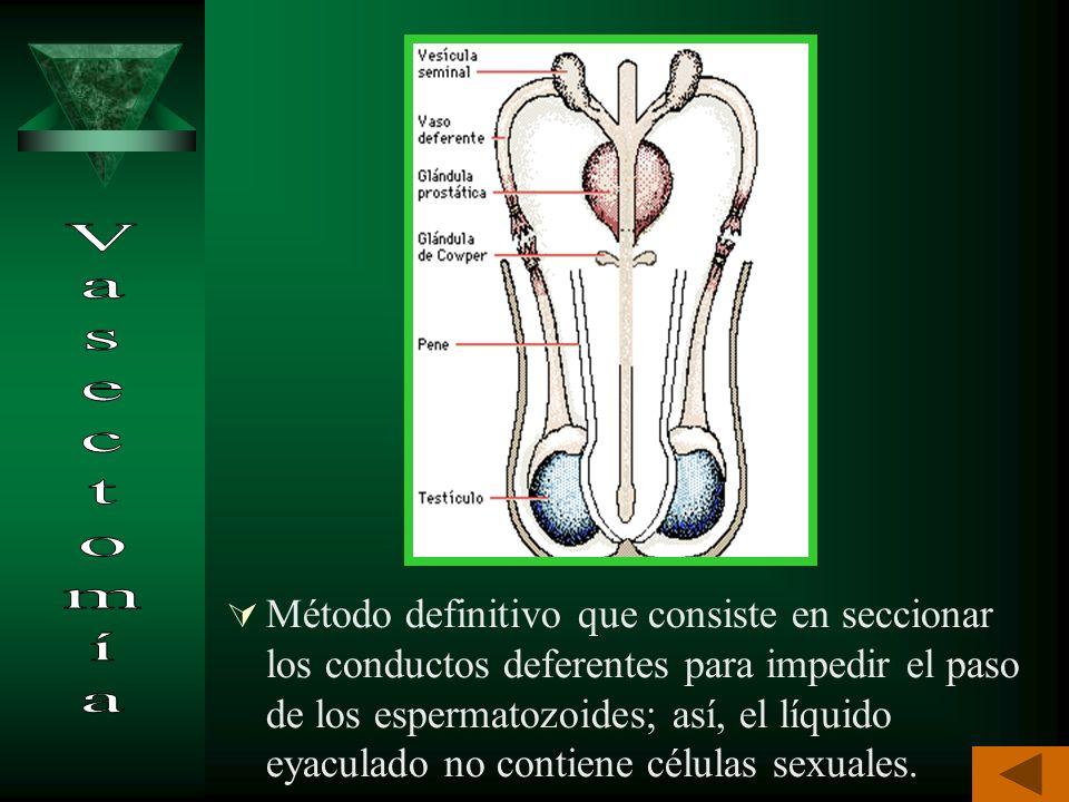 Es un método definitivo; consiste en seccionar y ligar las trompas de Falopio para impedir el paso del óvulo al útero y de los espermatozoides al terc