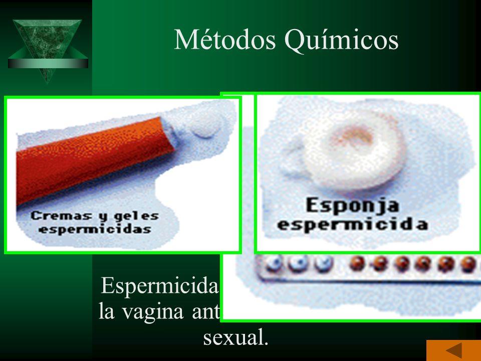 Son los procedimientos químicos, mecánicos, naturales o quirúrgicos que se emplean para evitar la unión del óvulo y espermatozoide o la implantación d