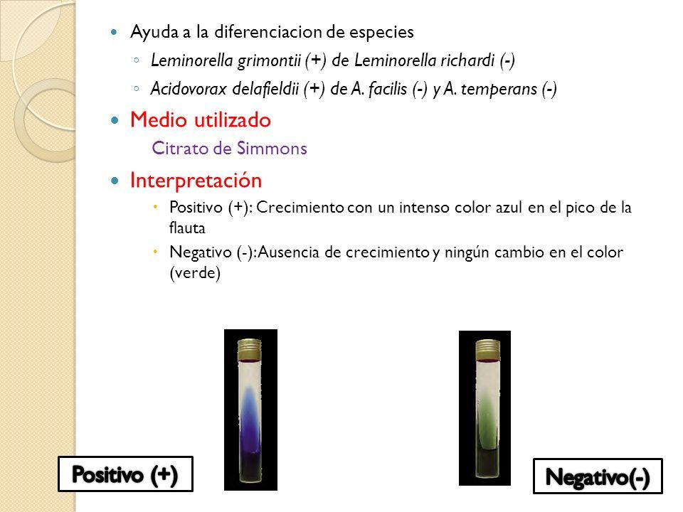 Ayuda a la diferenciacion de especies Leminorella grimontii (+) de Leminorella richardi (-) Acidovorax delafieldii (+) de A. facilis (-) y A. temperan
