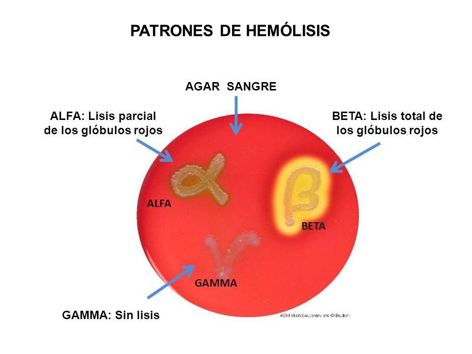ALFA BETA GAMMA AGAR SANGRE BETA: Lisis total de los glóbulos rojos GAMMA: Sin lisis ALFA: Lisis parcial de los glóbulos rojos