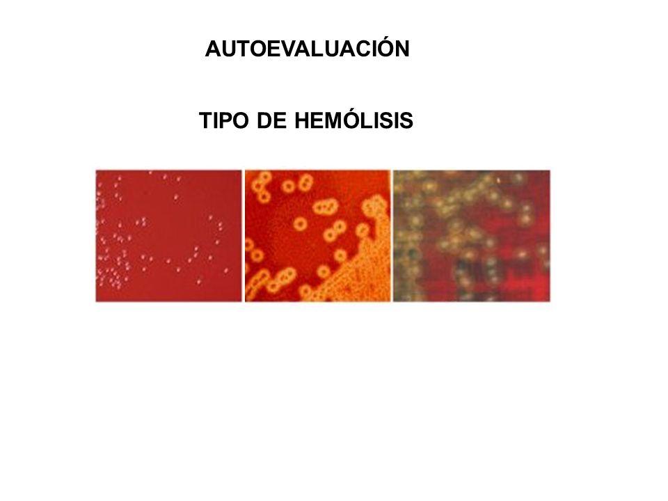 TIPO DE HEMÓLISIS AUTOEVALUACIÓN NO HEMOLITICO