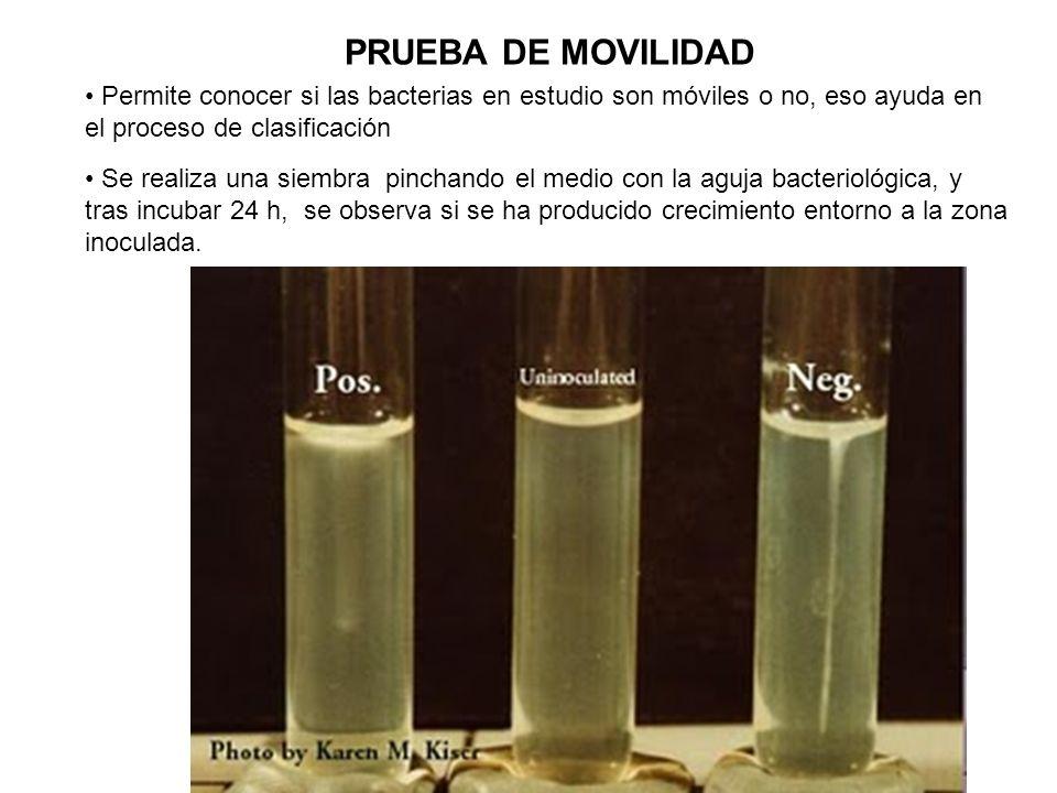 PRUEBA DE MOVILIDAD Permite conocer si las bacterias en estudio son móviles o no, eso ayuda en el proceso de clasificación Se realiza una siembra pinc