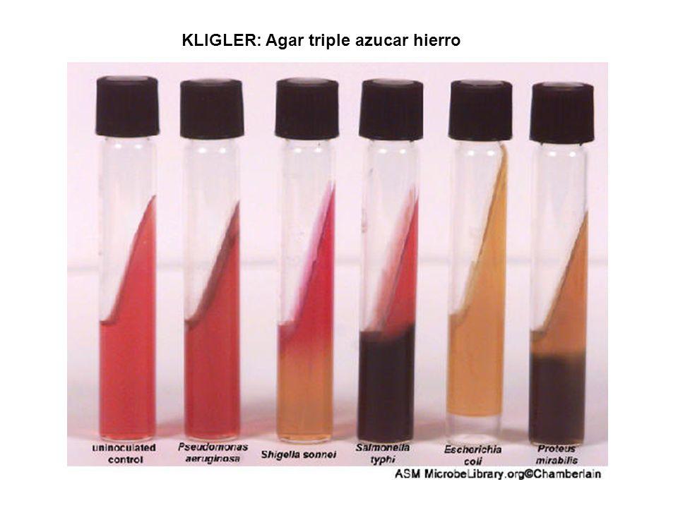 KLIGLER: Agar triple azucar hierro