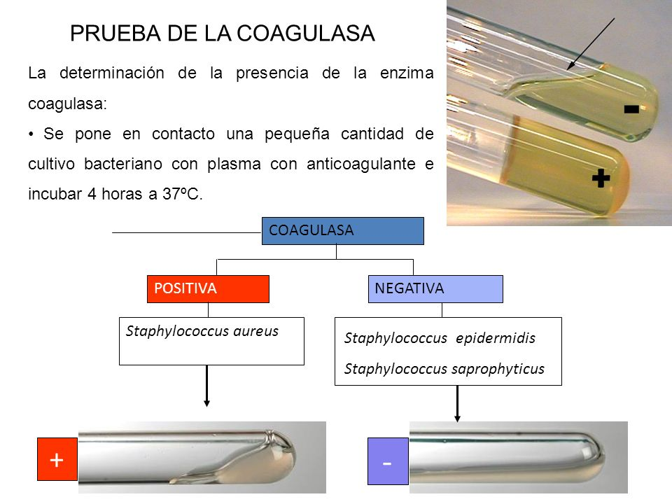 PRUEBA DE LA COAGULASA COAGULASA POSITIVANEGATIVA Staphylococcus aureus Staphylococcus epidermidis Staphylococcus saprophyticus + - + - La determinaci