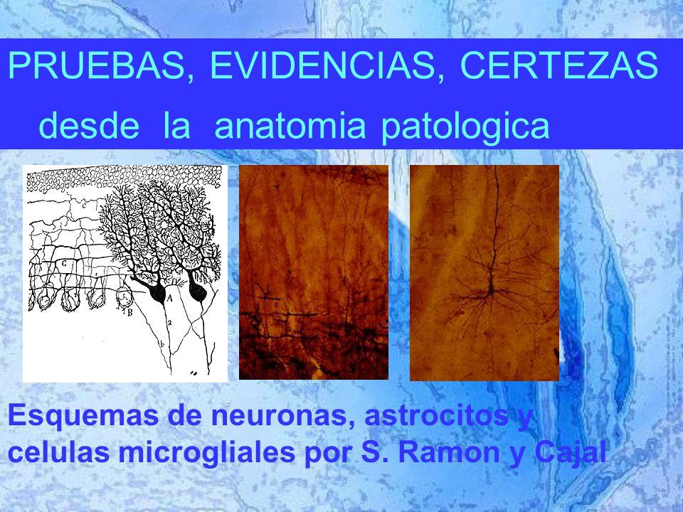 PRUEBAS, EVIDENCIAS, CERTEZAS desde la anatomia patologica Esquemas de neuronas, astrocitos y celulas microgliales por S.