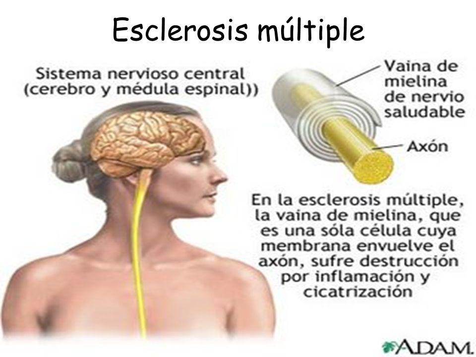 En una nota puesta por la EPA, se anunciaba que en los Estados Unidos en el 2001 había una epidemia de esclerosis múltiple y lupus, que no se sabía qu