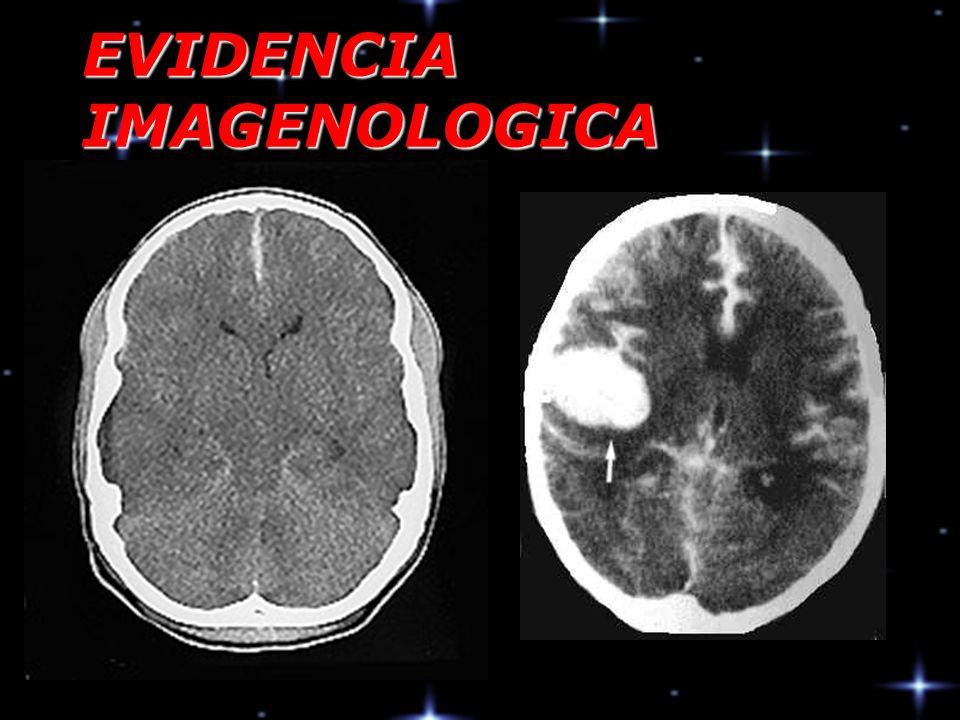 EVIDENCIA IMAGENOLOGICA
