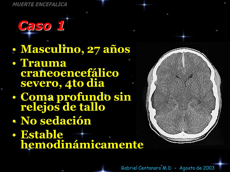 Gabriel Centanaro M.D - Agosto de 2003 MUERTE ENCEFALICA Caso 1 Masculino, 27 años Trauma craneoencefálico severo, 4to dia Coma profundo sin relejos d