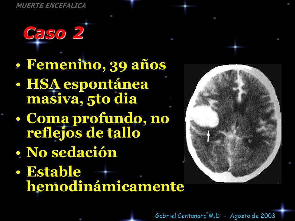 Gabriel Centanaro M.D - Agosto de 2003 MUERTE ENCEFALICA Caso 2 Femenino, 39 años HSA espontánea masiva, 5to dia Coma profundo, no reflejos de tallo N