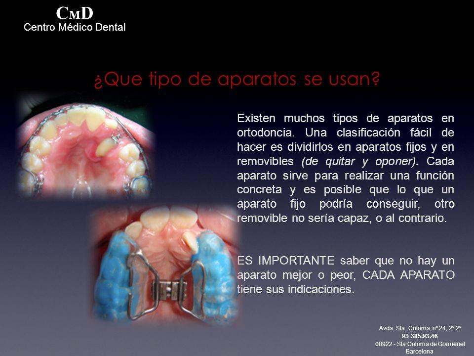 Existen muchos tipos de aparatos en ortodoncia. Una clasificación fácil de hacer es dividirlos en aparatos fijos y en removibles (de quitar y oponer).