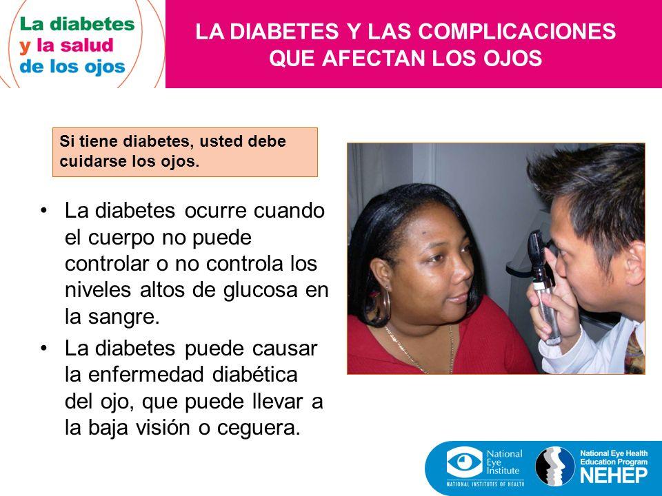 LA DIABETES Y LAS COMPLICACIONES QUE AFECTAN LOS OJOS Si tiene diabetes, usted debe cuidarse los ojos. La diabetes ocurre cuando el cuerpo no puede co