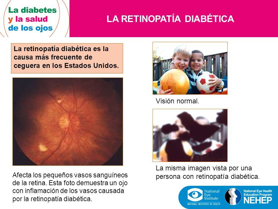 LA DIABETES Y LA CATARATA La catarata es muy común en todo el mundo y afecta a las personas con diabetes.