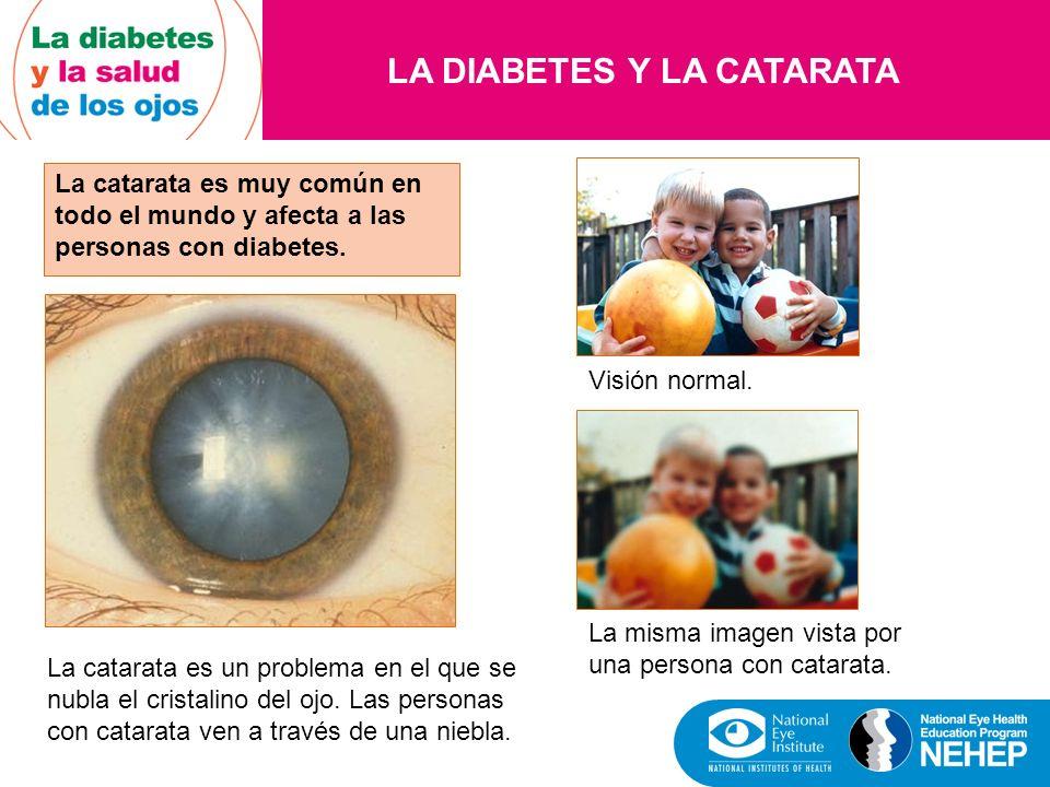 LA DIABETES Y LA CATARATA La catarata es muy común en todo el mundo y afecta a las personas con diabetes. La catarata es un problema en el que se nubl
