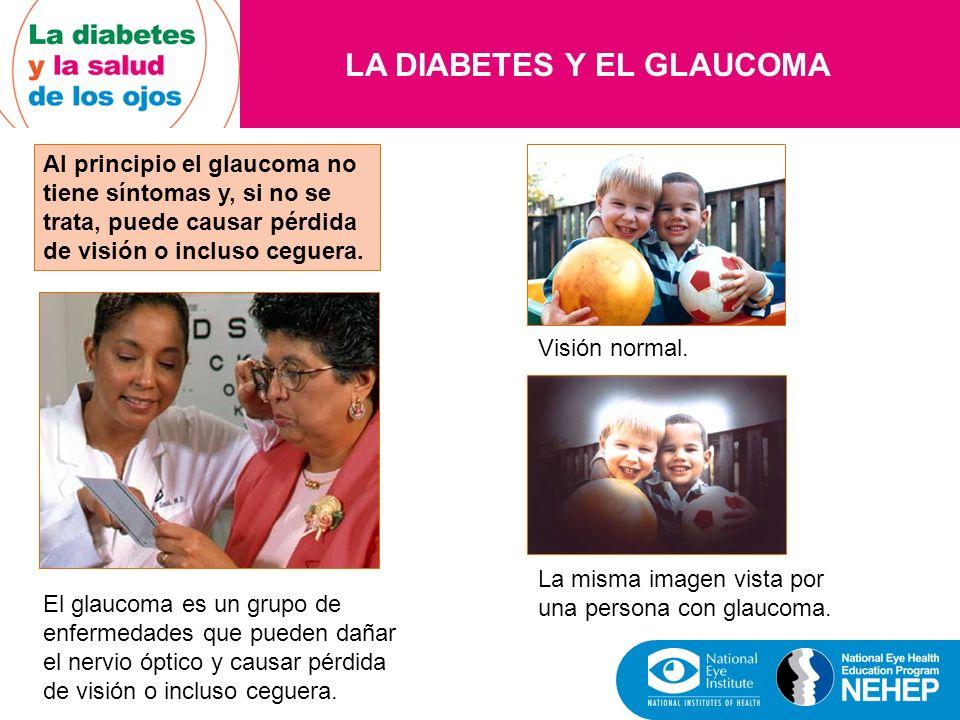 LA DIABETES Y EL GLAUCOMA Al principio el glaucoma no tiene síntomas y, si no se trata, puede causar pérdida de visión o incluso ceguera. El glaucoma