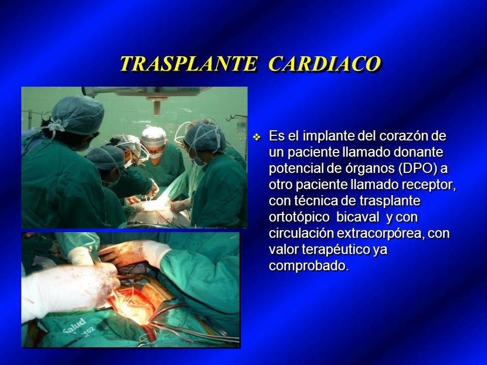 TRASPLANTE CARDIACO TRASPLANTE CARDIACO Es el implante del corazón de un paciente llamado donante potencial de órganos (DPO) a otro paciente llamado receptor, con técnica de trasplante ortotópico bicaval y con circulación extracorpórea, con valor terapéutico ya comprobado.