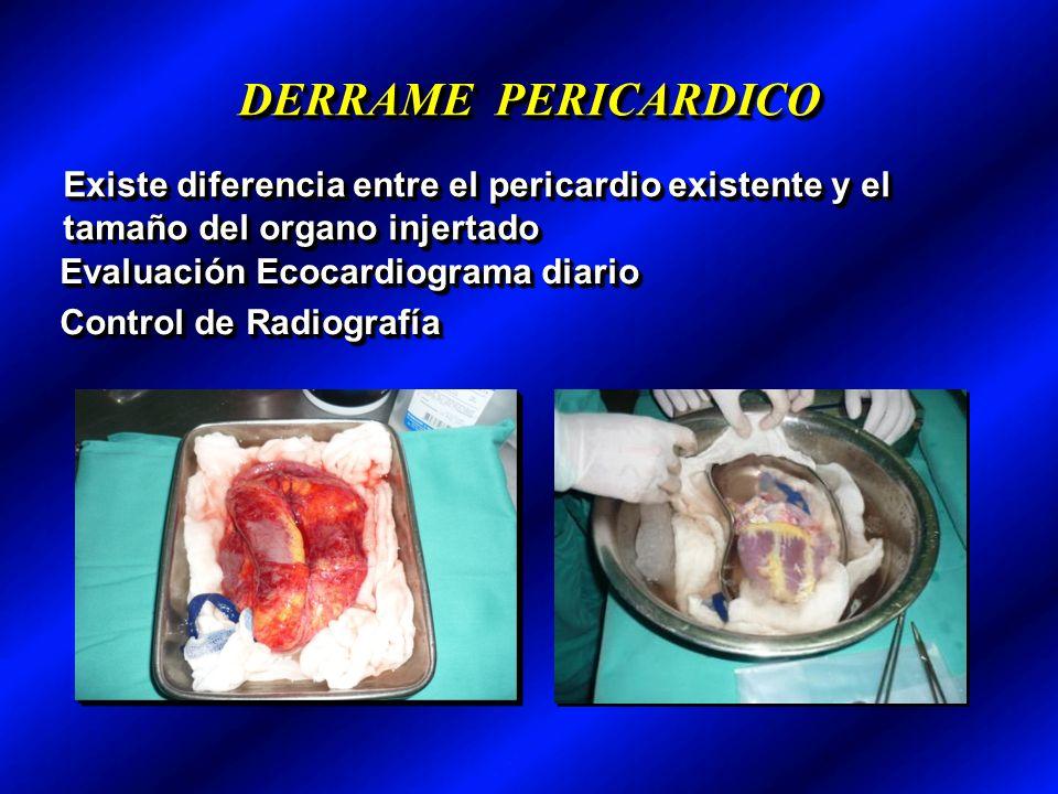 DERRAME PERICARDICO Existe diferencia entre el pericardio existente y el tamaño del organo injertado Evaluación Ecocardiograma diario Control de Radiografía