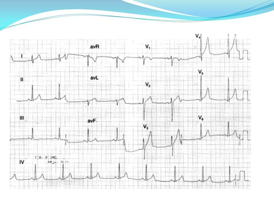 A.Pellicia el al,European Heart Journal (2011) 32, 934–944