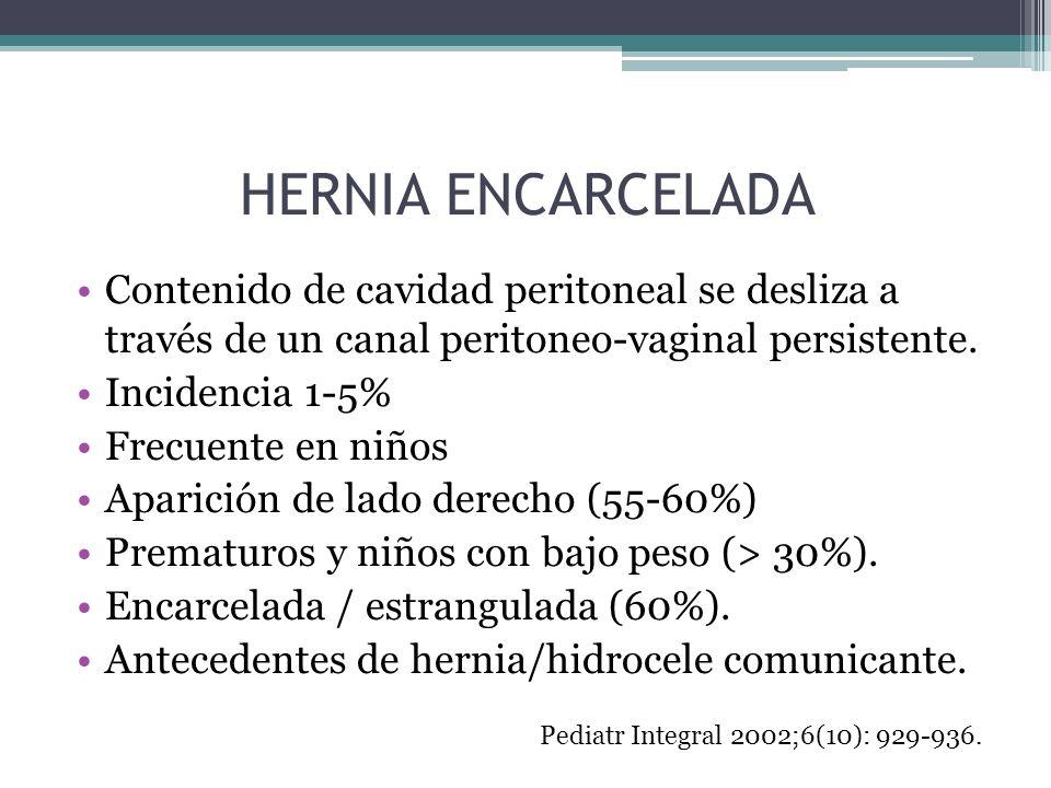 HERNIA ENCARCELADA Contenido de cavidad peritoneal se desliza a través de un canal peritoneo-vaginal persistente. Incidencia 1-5% Frecuente en niños A