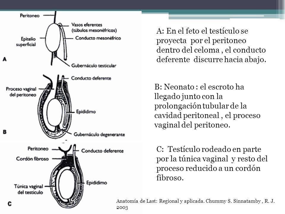 A: En el feto el testículo se proyecta por el peritoneo dentro del celoma, el conducto deferente discurre hacia abajo. B: Neonato : el escroto ha lleg