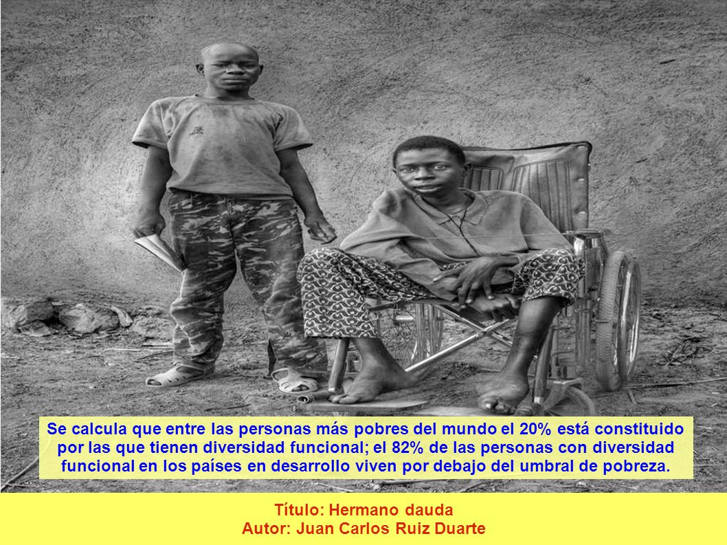 Título: Hermano dauda Autor: Juan Carlos Ruiz Duarte Se calcula que entre las personas más pobres del mundo el 20% está constituido por las que tienen diversidad funcional; el 82% de las personas con diversidad funcional en los países en desarrollo viven por debajo del umbral de pobreza.