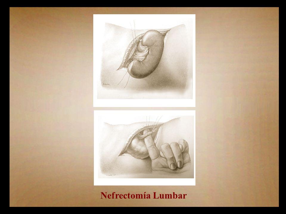 Nefrectomía Lumbar
