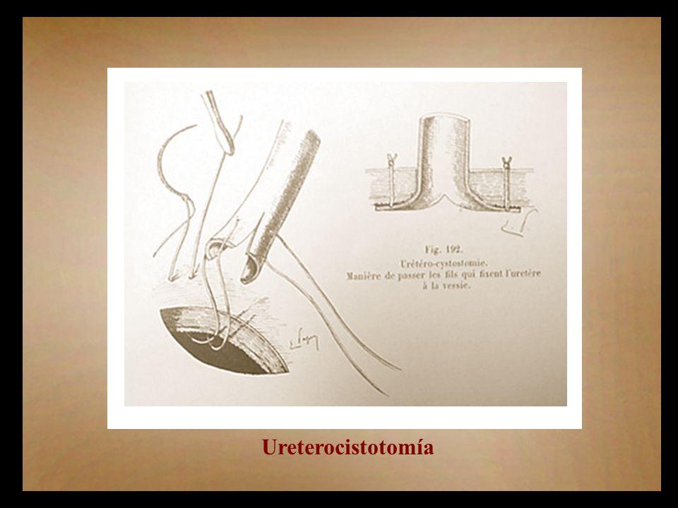 Ureterocistotomía