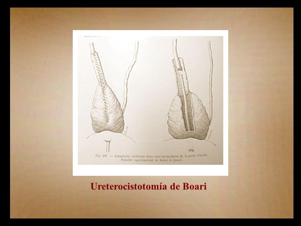 Ureterocistotomía de Boari